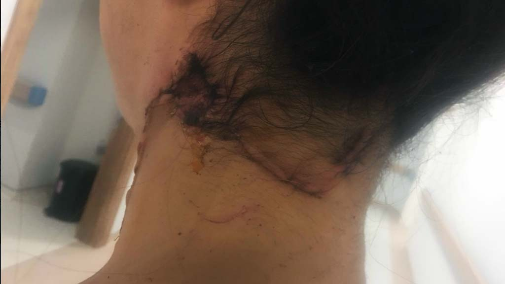 """Eşi 3 çocuk annesi Oya Aydoğdu 'yu boğazını keserek öldürmek istedi. Başaramadı. Cezaevinden """"Geleceğim"""" diye tehdit etti, sosyal medya devreye girdi"""
